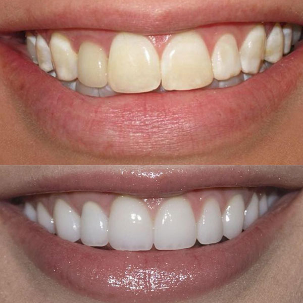 Teeth Whitening Berkhamsted Before and After Image 1