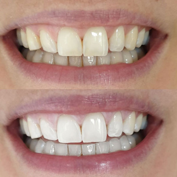 Teeth Whitening Berkhamsted Before and After Image 2